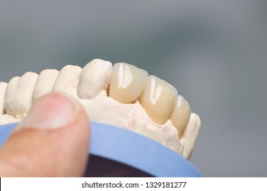 Close up of artificial dentition on a dental imprint in a dental laboratory