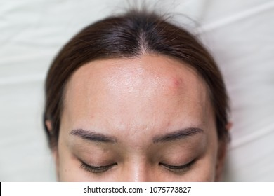 Close up Asian beautiful woman is acne skin problem on forehead, healthy skin care female concept background.