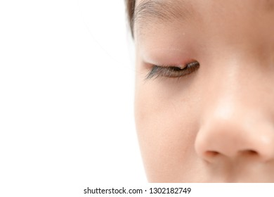 Close up of asian little girl one eye infection isolated on white background, eyelid abscess, stye, hordeolum. Concept of health, disease