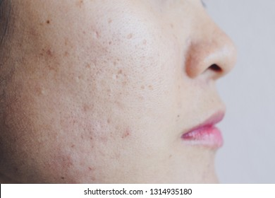 Close up of Asian woman face has problems with skin on her face. Problems with acne and scar on the female skin.