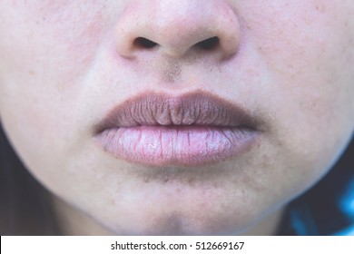 Close up asian woman mouth and face with brittle and dry lips. Lip salve and wounds