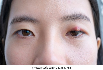 Close up of Asian young woman with brown eye with stye infection. Eyelid abscess, hordeolum in medical health, disease and treatment concept.