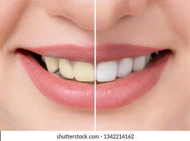 Close up beautiful teeth before and after whitening or bleaching, health dental care beauty clinic concept