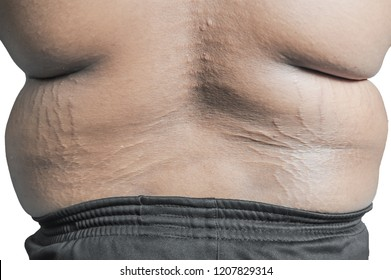 Close up of Black Man sweaty torso with stretch marks.Fat in the skin.