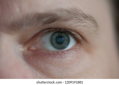 close up of a blue-grey eye of a caucasian woman with cataract