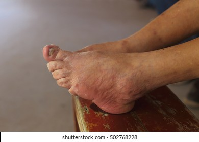 Close up of bound foot of a 97 years old Chinese old woman, born in 1919, the last generation that bind the feet of woman