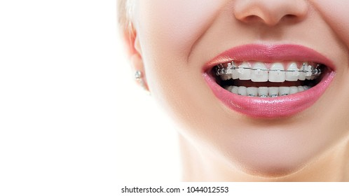 Close up Braces on Teeth. Braces Smile. Orthodontic Treatment. Closeup Smiling Face with Braces. Front view.