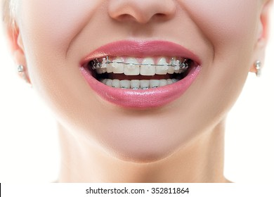 Close up Braces on Teeth. Braces Smile. Orthodontic Treatment. Closeup Smiling Face with Braces. Front view.â?¨