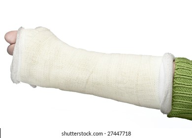 A close up of a broken arm in a plaster cast on a white background.