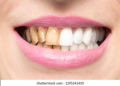 Close up of brown yellow teeth of woman for smoke addiction befo