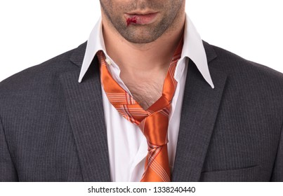Close up of a businessman with bloody lip, beaten and bruised, isolated