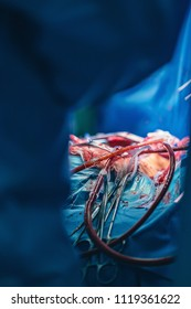 Close up of cardiovascular surgery doctor in surgery center for interventions instruments in surgeon operation electrosurgery with thoracotomy microsurgery doing minimal invasive open heart surgery