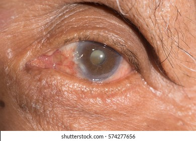 close up of cataract during eye examination.senile cataract, mature cataract.pterygium.pseudo exfoliation.