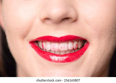 Close up of a caucasian face and mouth with red lips and lipstick on her white teeth
