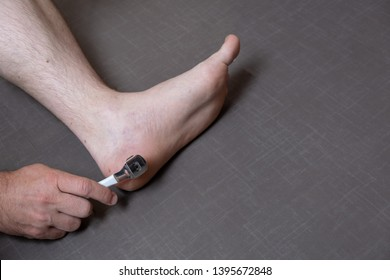 Close up of caucasian male dehydrated skin on the heels, trating callus, corn with scraper file, man removing corn, callus from his feet, masculine skin care, skin disease, fungal infection,healthcare