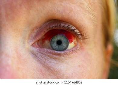 Close up a a caucasian women's blue eye with a Subconjectival Hemorrhage, or broken blood vessel.
