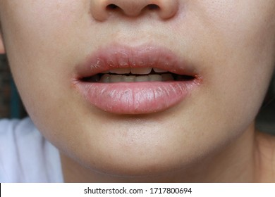 close up of chapped, cracked lips caused wound on the corner of the lips: dry skin problem with mouth disease, Angular cheilitis