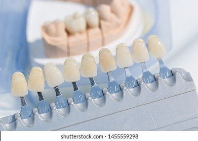 Close up of checking veneer of artificial dentition on a dental imprint in a dental laboratory