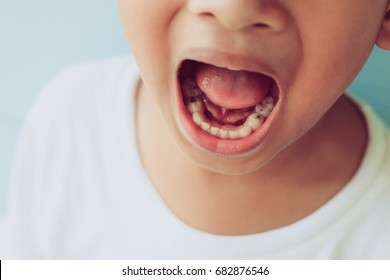 Close up child cavities