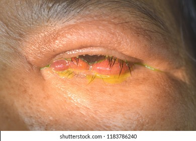 close up of the conjunctivitis during eye examination.