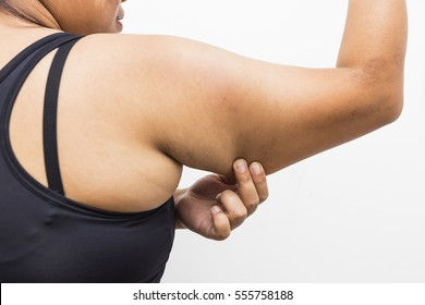 Close up Conscious Young Woman Holding Excess Fat on her Arm Against Grey Wall Background.Women with fat belly and big her arm, Lose weight and liposuction cellulite removal concept,