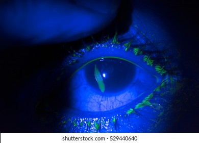 close up of corneal abrasion during eye examination. in dark room.