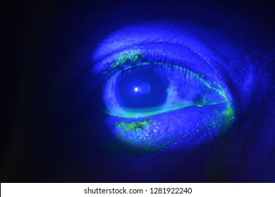 close up of the corneal dellen during eye examination.