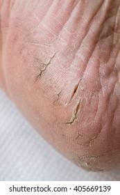 Close up cracked heel