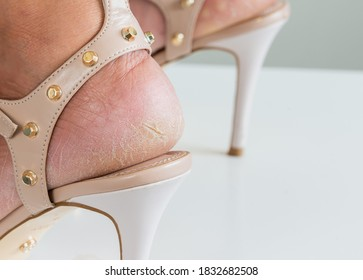 Close up the cracks on dry heels of a woman in high heel shoes on a white background dehydrated skin on the heels of female feet.