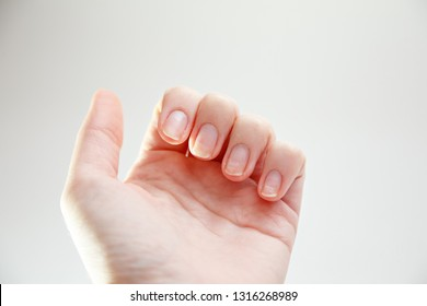 Close up Damage of the nail after using gel-lacquer or shellac. Injury of the nail. Gel lacquer ruined nails. Hand on the white background. Dry, damage nails. Woman's issues. Empty place for text