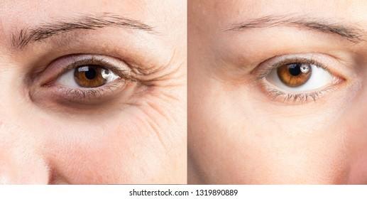 Close up of dark circles under eyes of wrinkled beautiful lady b