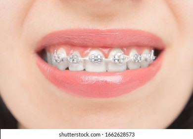Close up to dental braces. Brackets on the teeth after whitening. Self-ligating brackets with metal ties and gray elastics or rubber bands.