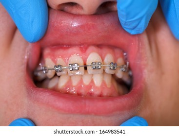 Close up of a dental braces at a dental clinic