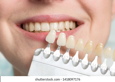 Close up of dentist using shade guide at woman's mouth to check for bleaching