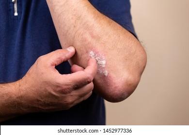 Close up dermatitis on skin, ill allergic rash dermatitis eczema of patient , atopic dermatitis symptom skin detail texture , Fungus The concept dermatology, treatment fungal and fungal.