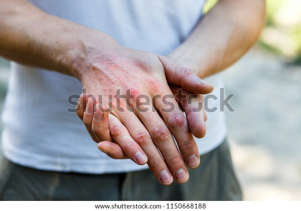 Close up dermatitis on skin, ill allergic rash eczema skin of patient , atopic dermatitis symptom skin detail texture , Fungus of skin ,The concept dermatology, treatment fungal. Man itching his hand