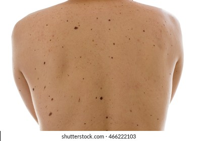 Close up detail of the bare skin on a man back with scattered moles and freckles , Disorders of  body , Checking benign moles  , Sun effect on skin.