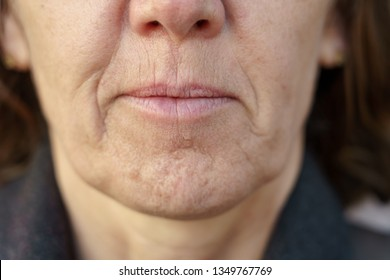 Close up detail of the chin of a middle-aged woman without makeup showing the wrinkles and dimpling of the skin associated with ageing