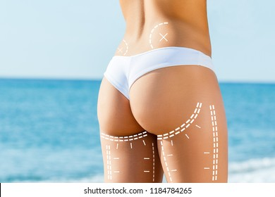 Close up detail of female buttock with surgical contour lines.Areas on shin marked with dotted lines for liposuction surgery.