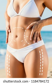 Close up detail of slim attractive female torso in white bikini outdoors.Conceptual dotted surgical incision lines marked on skin for tummy tuck.Girl touching hips with hands.