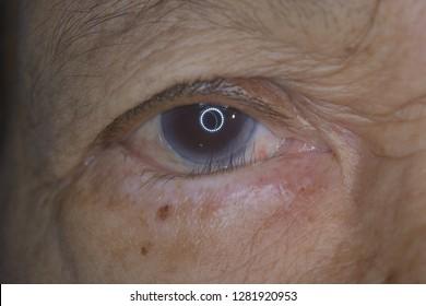 close up of the districhiasis during eye examination.