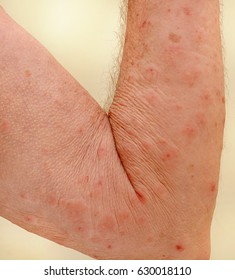 Close up of an elderly man's inner arm severely infested with Scapies mites (Sarcoptes scabiei).