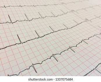 Close up of Electrocardiogram, Electrocardiography or EKG chart using for fetal heart monitoring. diagnostic, healthcare, medical service.