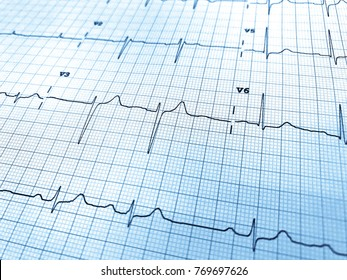Close up of an electrocardiogram in paper form. ECG or EKG paper for medical and healthcare concept. Blue color style for background.