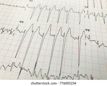 Close up of an electrocardiogram in paper form. ECG or EKG paper background for medical and healthcare concept.