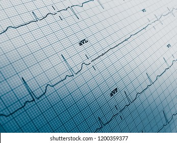 Close up of an electrocardiogram in paper form. Medical and healthcare concept for background.