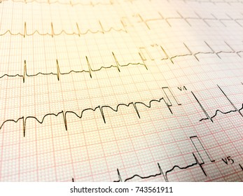 Close up of a Electrocardiograph also known as a EKG.