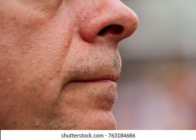 Close up of a European man's face.