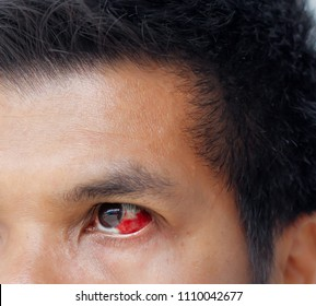 Close up the eye in asian man blood in the eye from a subconjunctival hemorrhage usually disappears within a week or two.Human eye and blood .Selective focus