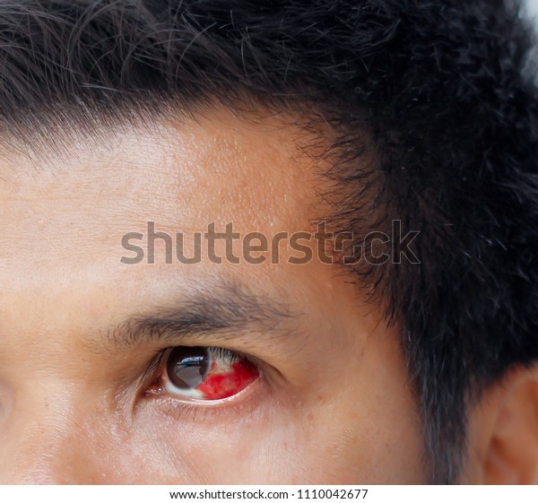 236ff9d369a Close up the eye in asian man blood in the eye from a subconjunctival  hemorrhage usually